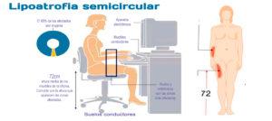 Lipoatrofia Semicircular- ¿qué es y cómo prevenirla?